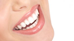 A Quick Note On Laser Teeth Whitening