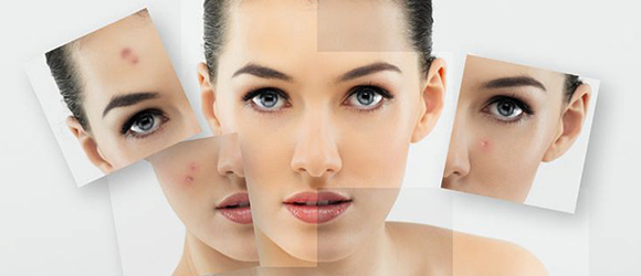 Know The Effectiveness In The Laser Acne Scar Removal Treatments
