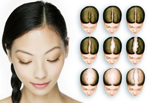 hair loss protection